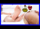 Elimina los callos de tus pies con este remedio de yogur y vinagre
