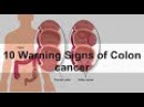 10 Warning Signs of Colon Cancer You Shouldn't Ignore Health Information