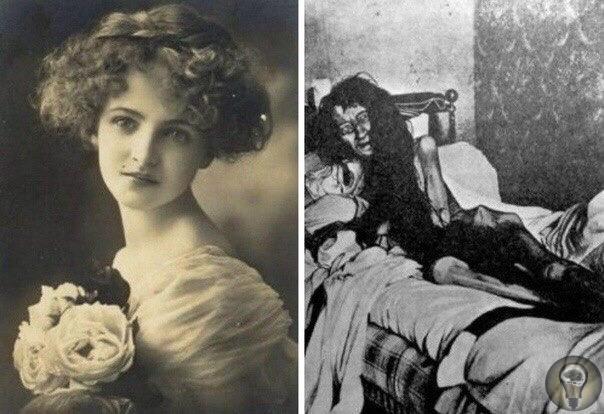 Это не кадр из фильма ужасов В конце 19 века в городке Пуатье во Франции проживала уважаемая всеми семья Монье и принадлежала к верхушке среднего класса.Когда исчезла 25-летняя Бланш Монье, это