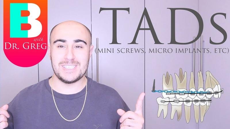 BRACES EXPLAINED TADs Mini Implants