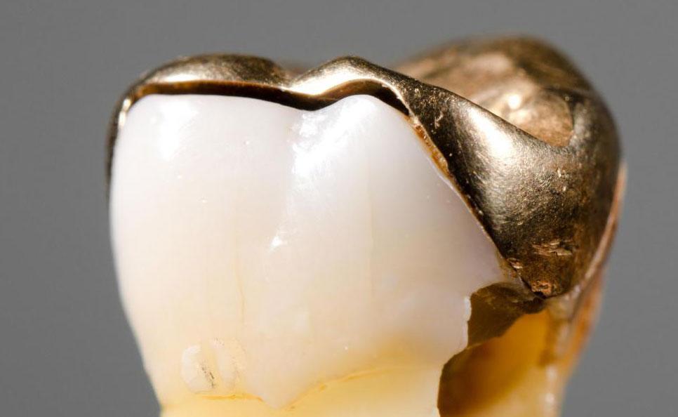 Оставшийся зубной кариес является одной из причин зубной боли после пломбы.