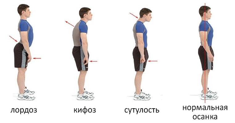 как ходить с ровной спиной