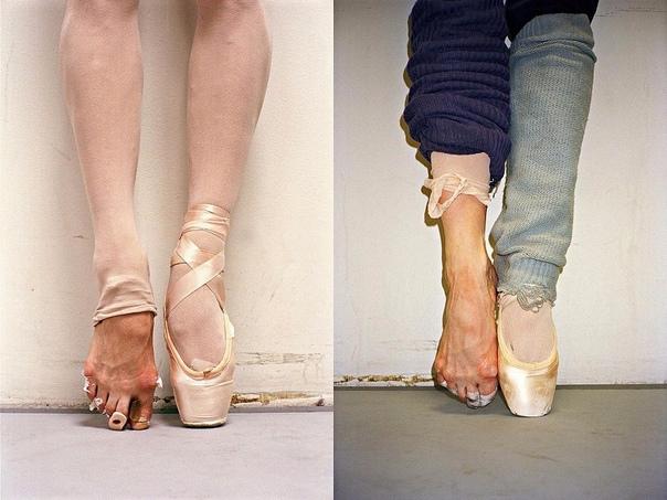 «Воздушный мир» балета. Обратная сторона медали Когда на сцене порхает балерина, кажется, что ей ничего не стоит сделать то или иное сложнейшее па, закинуть ножку выше головы, подняться на носок