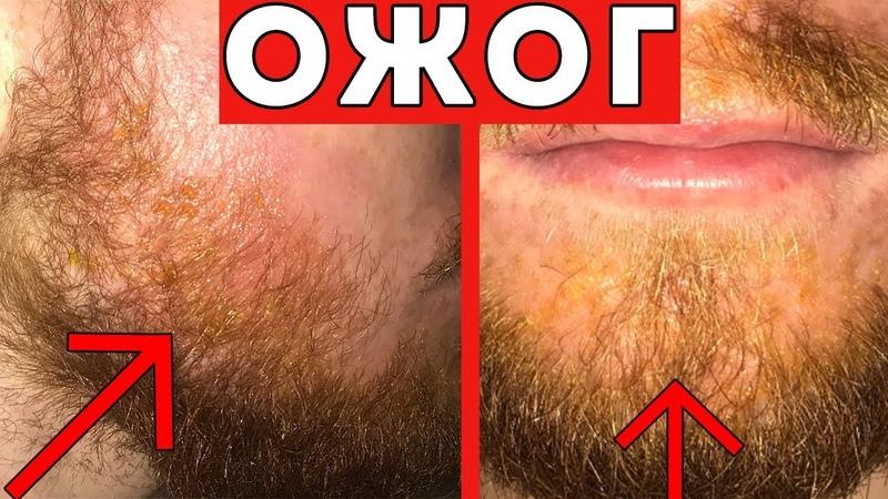СЖЕГ ЛИЦО МИНОКСИДИЛОМ Нанес ПРОСРОЧЕННЫЙ миноксидил на бороду